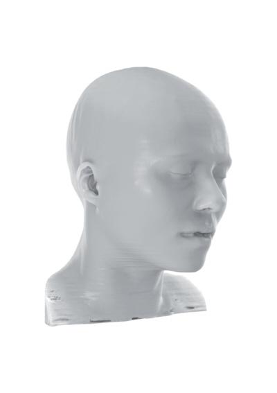 TACs (Tomografías Axiales Computarizadas