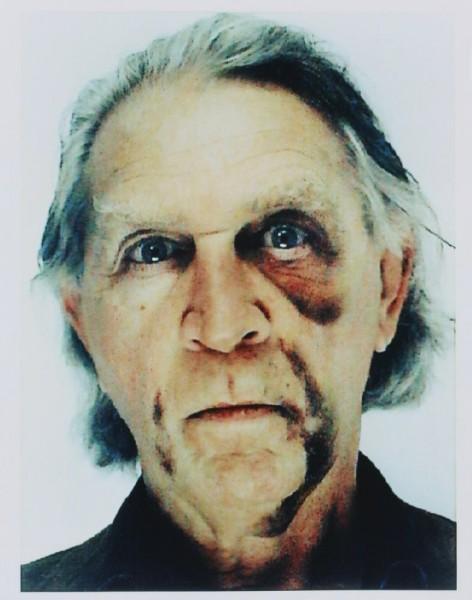 Jimmie Durham, Jimmie Durham. Self-portrait with bLack eye and bruises (Autorretrato con ojo morado y contusiones), 2006. Cortesia Fundación ARCO