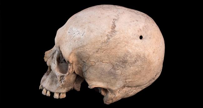 Cuidar, curar, morir. La enfermedad leída en los huesos – Cortesía del Museo Universidad de Alicante (MUA)